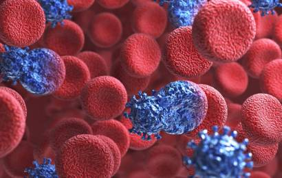 Число новых ВИЧ-инфекций на острове только растёт