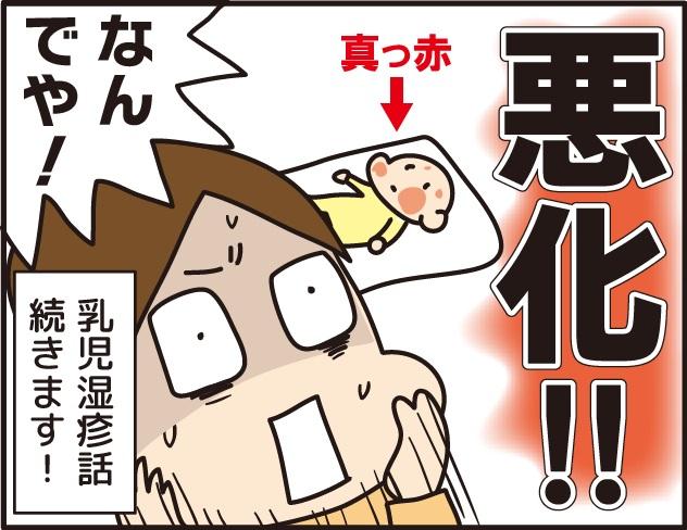 赤ちゃんの顔の赤い湿疹が広がり、乳児湿疹が悪化!原因は何?!