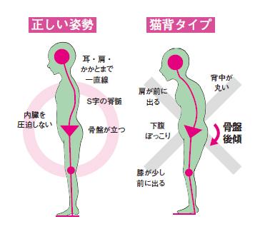 正しい姿勢と猫背タイプイメージ