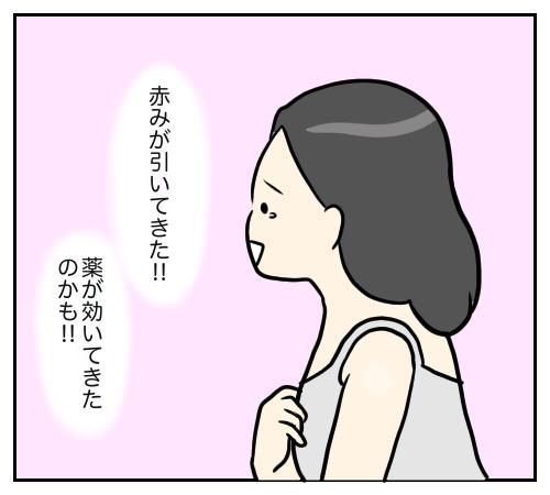 赤み 乳腺 炎