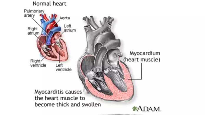 Rare Risk of Myocarditis after COVID Vaccination, mRNA COVID-19 vaccines may be 'new trigger'