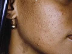 dark skin concerns