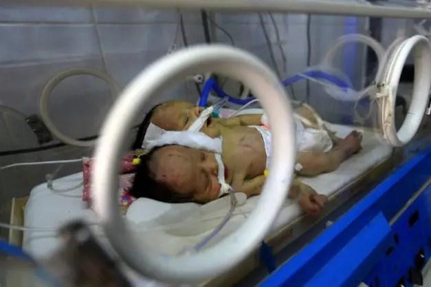 Yemen conjoined twins