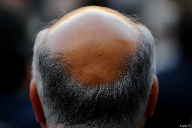 man with baldness