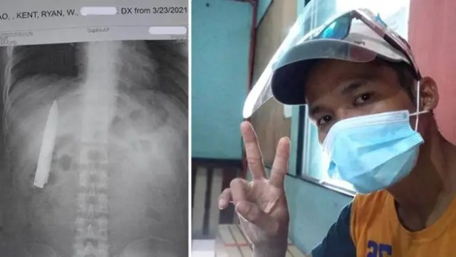 had no idea he had a knife blade stuck inside his chest for more than a year (Photo)