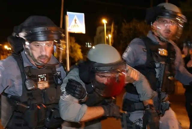 100s wounded in weekend of east Jerusalem violence
