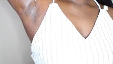dark armpits