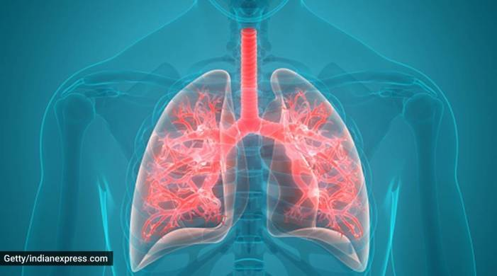 World COPD Day: Here's everything you need to know about the chronic lung disease