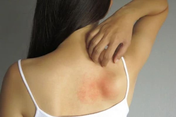 4 Common Skin Disease During Summer And Remedies