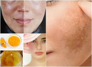 Homemade Remedies For Melasma