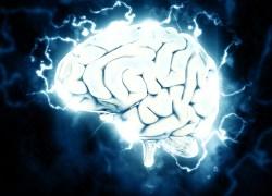 Brain Imaging AI leader icometrix Raises $18 Million