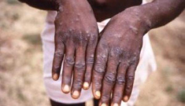 •hands afflicted with monkeypox virus