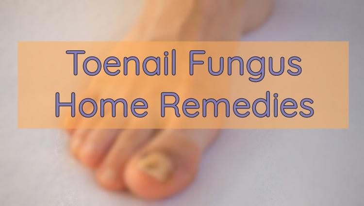 TOENAIL FUNGUS: 10 Home Remedies To Treat This Problem
