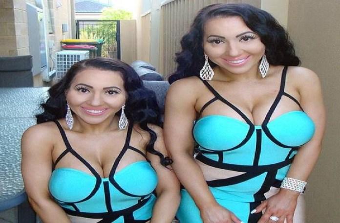 जुड़वा बहनें बिल्कुल एक जैसी, ब्वॉयफ्रेंड भी करती हैं शेयर