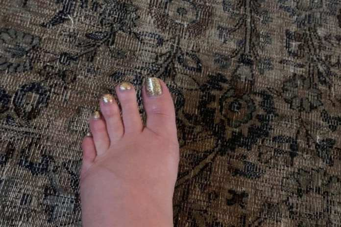 Jessica Simpson's swollen foot (c) Instagram