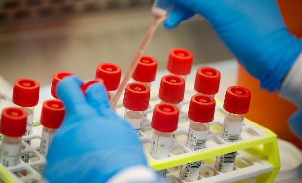 Coronavirus Test Kits