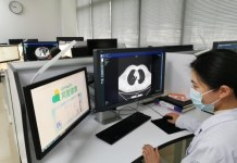 Alibaba's CT image analytics technology is used in COVID-19 treatment. Photo courtesy of AilHealth.