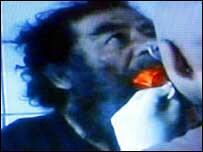 Saddam Hussein being medically examined