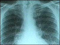 Muchos casos de cáncer de pulmón se detectan a través de una radiograf�a .