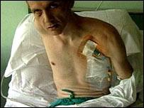 https://i1.wp.com/newsimg.bbc.co.uk/media/images/40786000/jpg/_40786603_injuredcovell203.jpg