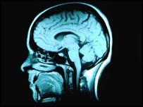Ciertas partes del cerebro se activan cuando pensamos en el futuro.