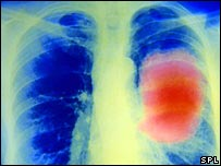 La vacuna está dirigida a la forma más común de cáncer de pulmón.