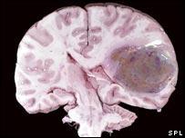El tratamiento de los glioblastomas puede ser muy dif�cil.