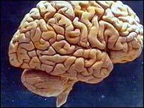 El estudio permitirá saber más sobre el proceso regenerativo en el cerebro.