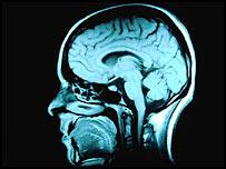 Se cree que mucha gente utiliza fármacos para aumentar la capacidad cerebral.