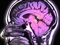 El estudio encontró que la memoria no se pierde, se vuelve inaccesible.