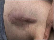 Pte Robin McDermott's injured leg