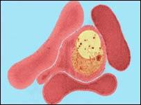 Glóbulo infectado de malaria