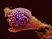 Célula de próstata cancerosa