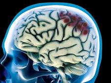 injured brain scan image