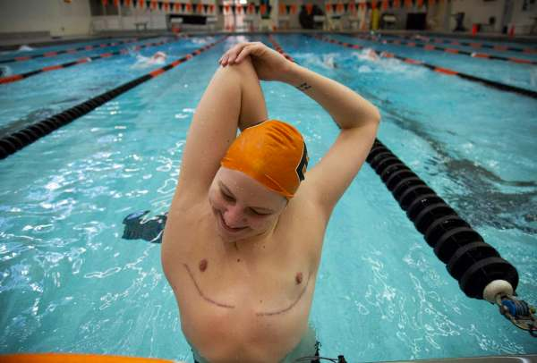 """Colby Love, 18, of Bethel Park stretches his tricep while in the middle of drills during swim practice, Wednesday, Feb. 6, 2019, at Bethel Park High School in Bethel Park. Scars from his top surgery, which was completed in the fall of 2018, can be seen extending across his rib cage. """"It was the whole like, I'm only swimming if I'm going to have surgery and there's a really good chance I'm going to get denied for coverage, but everything ended up working out,"""" Love says while explaining how and why he decided to swim again after taking a year off due to the decline in his mental health. """"One of the things that is so dumbfounding to me,"""" laughs Love, """"[is] the fact that I literally was just out and then woke up and I didn't have boobs anymore. It was just the most amazing thing in the entire world,"""" remembers Love while reflecting on the moments after his top surgery."""