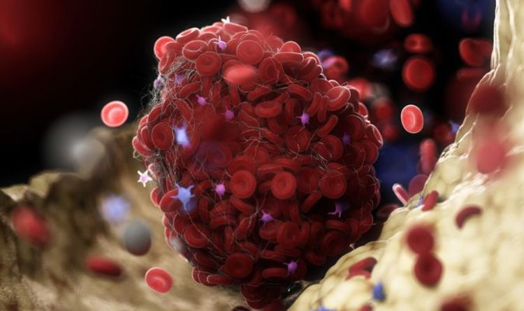 Blood clot symptoms: What are the symptoms of a blood clot? How to spot medical emergency