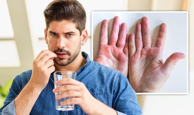 Best supplements for eczema: Probiotics and prebiotics shown to help ease sore skin