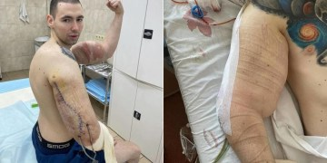 'Saving my life from this poison': Russian MMA flop 'Bazooka arms' shows horror scars after removing bicep enhancers