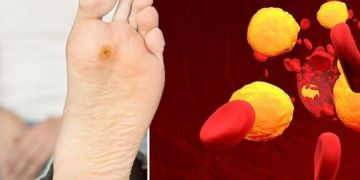 High cholesterol symptoms: Three serious warning signs in your feet - what to look for