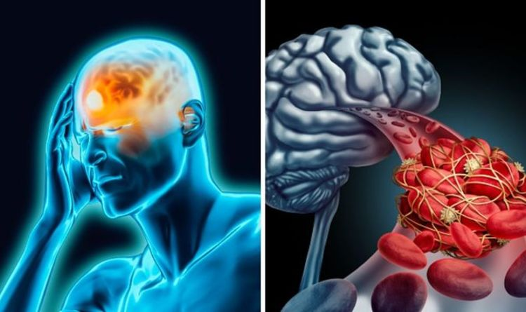 Cerebral Venous Sinus Thrombosis symptoms: What are the warning signs of the blood clot?