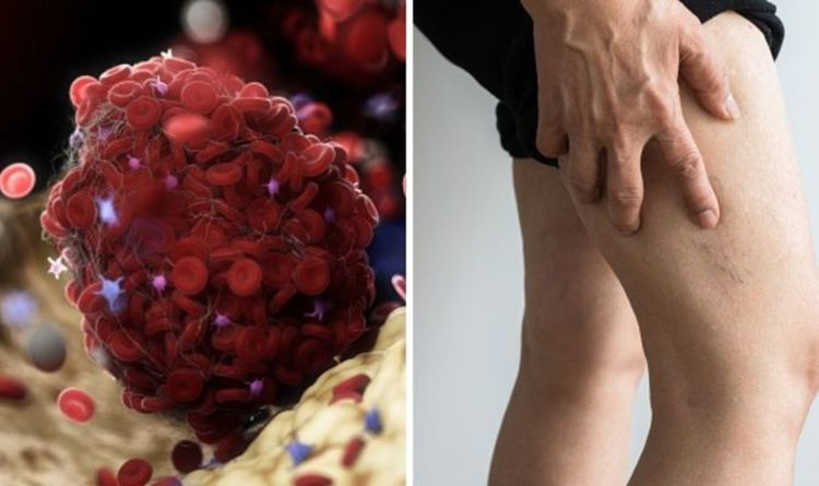 What does it feel like when you have a blood clot? The dangerous warning signs