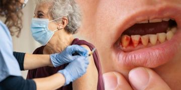 Covid vaccine side effects: Is there a connection between bleeding gums and Covid vaccines