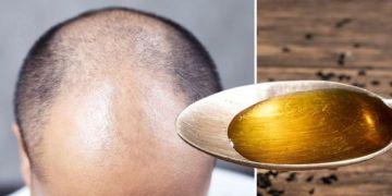 Hair loss treatment: Black cumin oil causes 'significant improvement' in hair growth