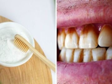How to get rid of brown stains on your teeth - using baking soda