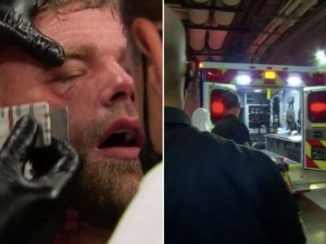 Billy Joe Saunders rushed to hospital with suspected broken eye socket after Canelo defeat
