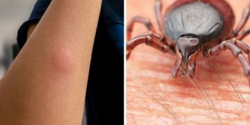 Lyme disease symptoms: How common is lyme disease in the UK?