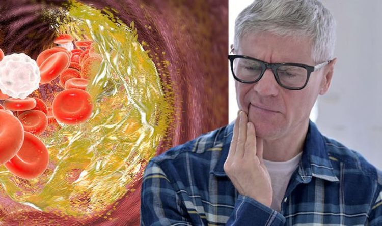 High cholesterol symptoms: The warning sign in your mouth of elevated levels
