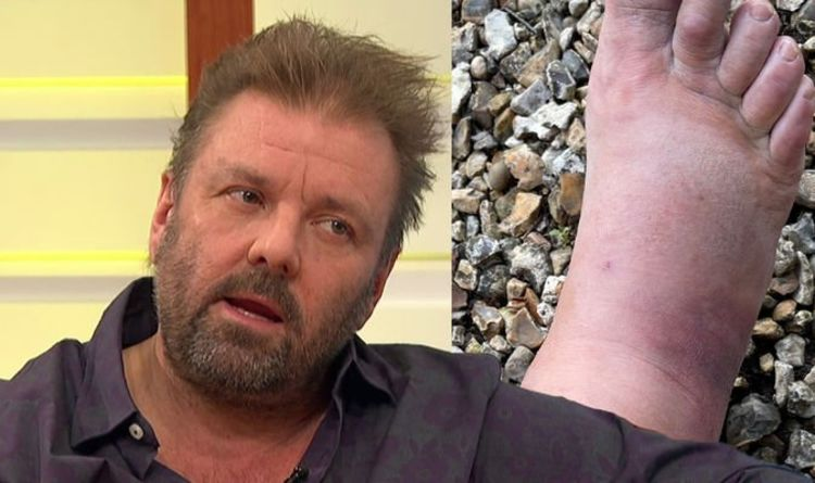 Martin Roberts rushes for hospital because of his 'worrying condition'