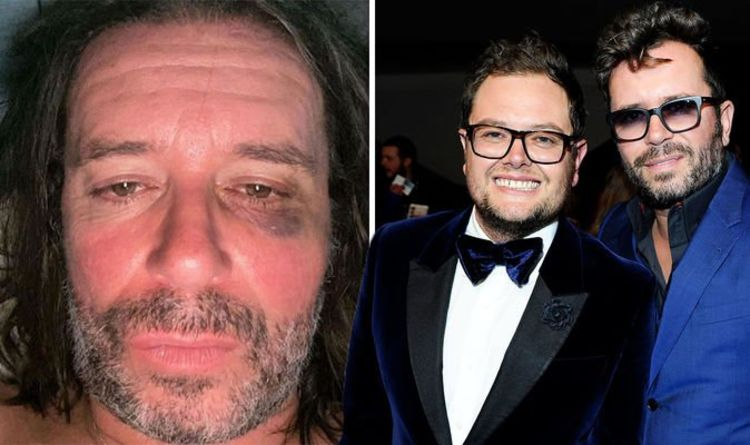Paul Drayton, Alan Carr's spouse, admits that he punched HIMSELF Pic of the black eye in its aftermath