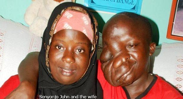 Ssenyonga-and-girlfriend ugliest